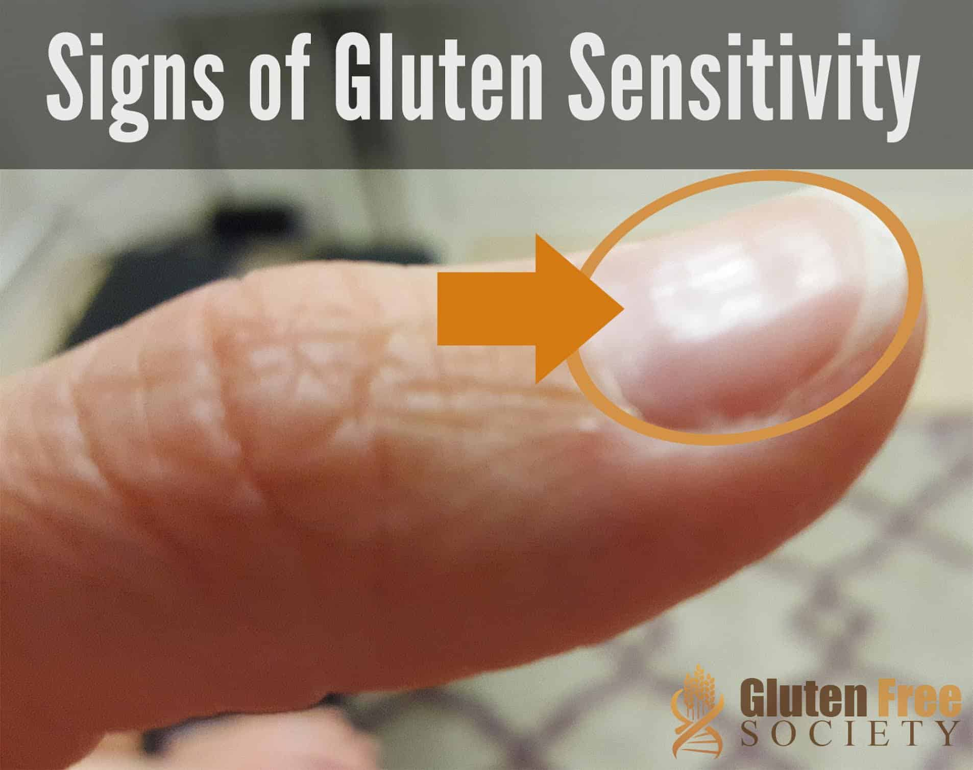 Gluten Sensitivity And Iron Deficiency