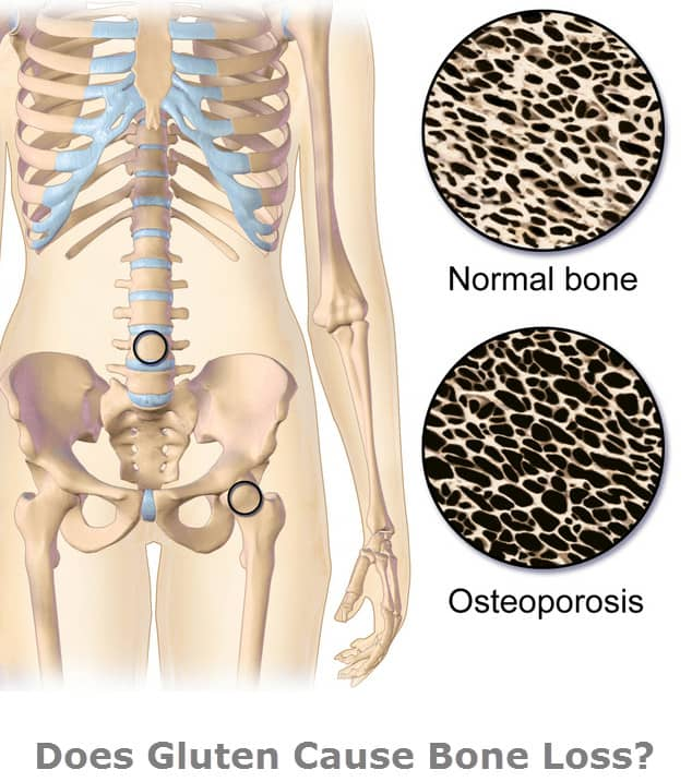 Is gluten one of the causes of osteoporosis