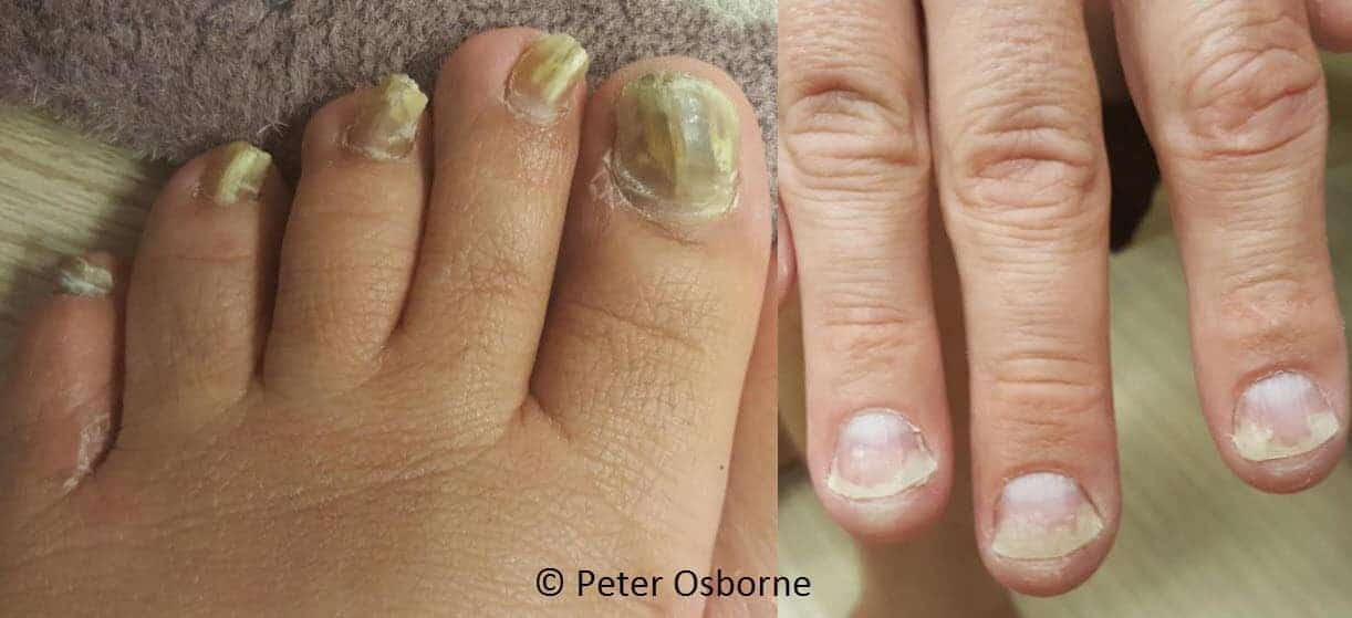 yeast in the nails