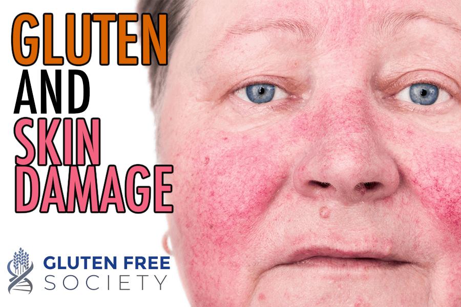 skin disease and gluten