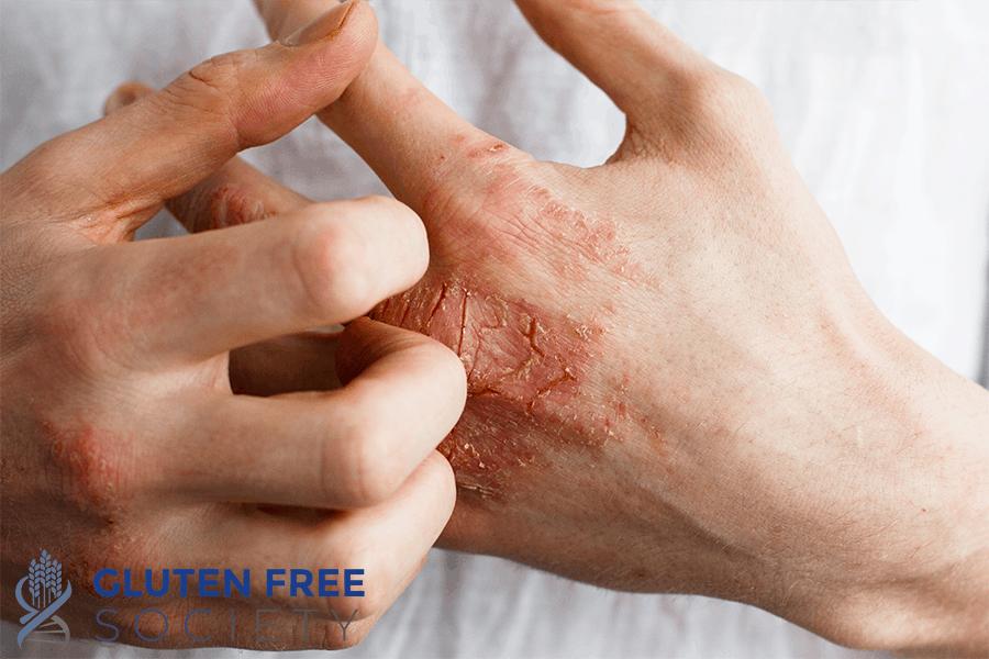 gluten and eczema