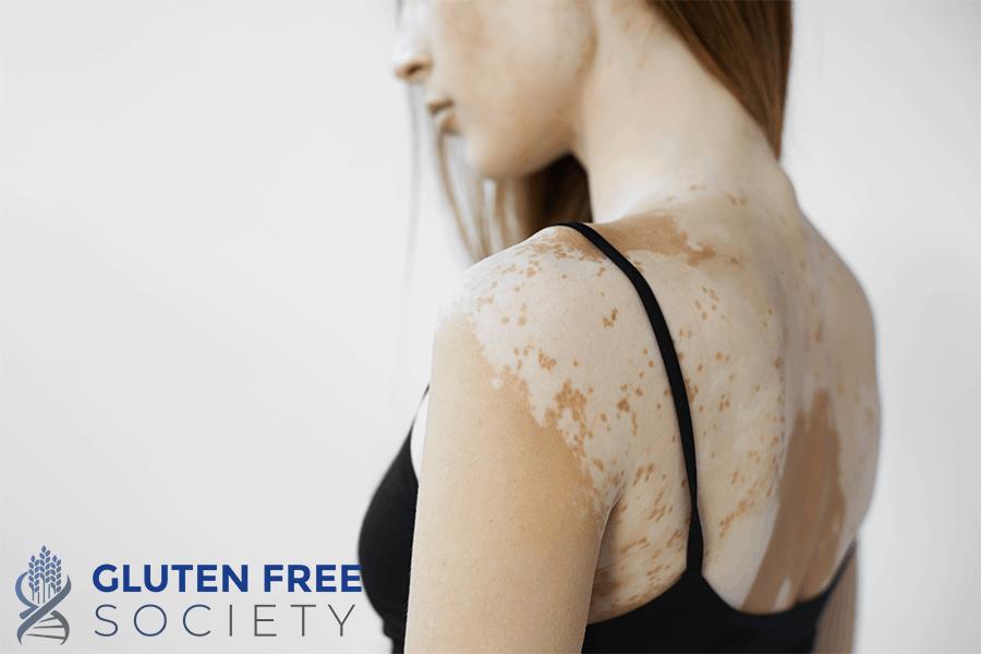 gluten and vitiligo