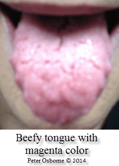 Your Tongue and Nutrition | Gluten-Free Society B12 Deficiency Tongue