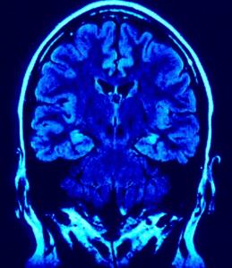 Cérebro Glúten e apreensões