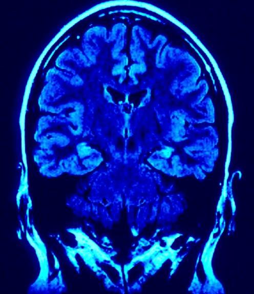 Brain Gluten and Seizures