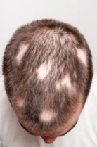Is gluten linked to hair loss gluten free society gluten found to be a cause of autoimmune hair loss urmus Choice Image