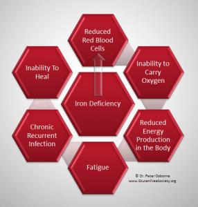 Iron deficiency and gluten sensitivity