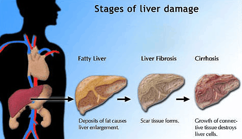 gluten sensitivity and liver disease | gluten-free society, Human Body