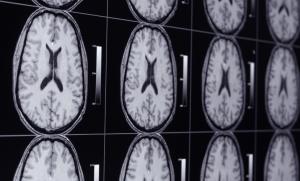 Brain MRI shows gluten induced nerve damage