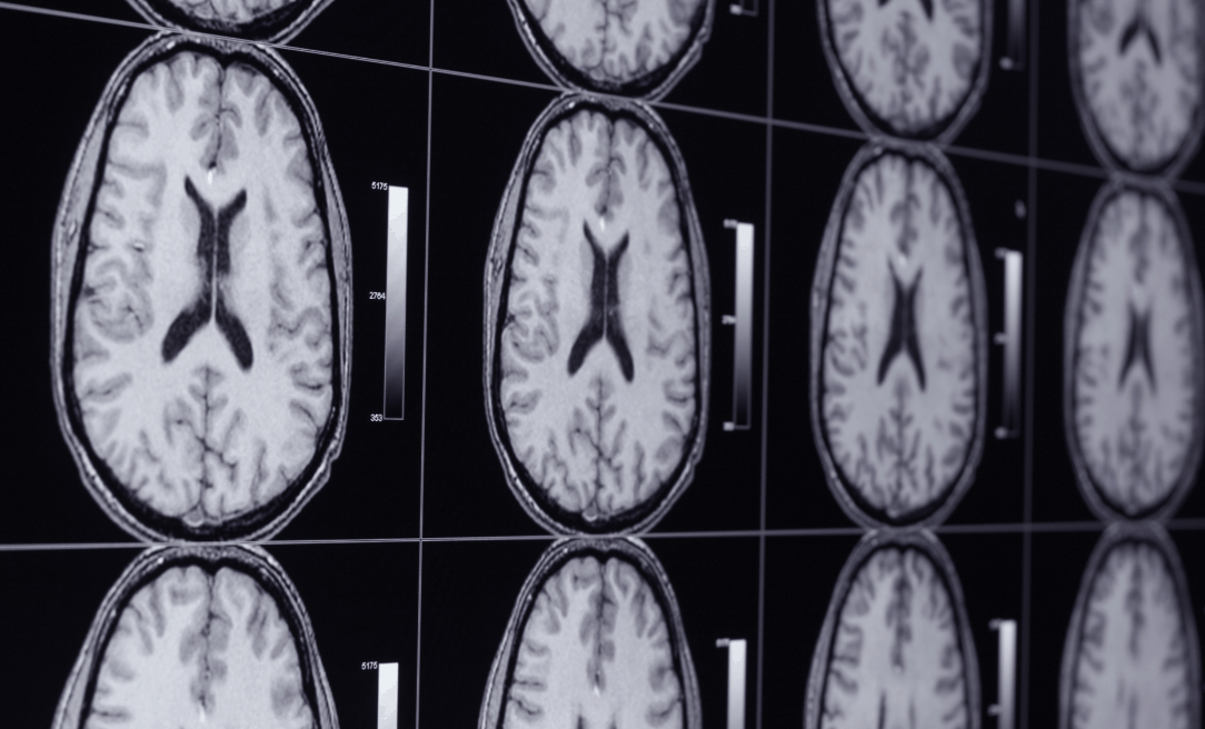 What Is The Wet Brain Syndrome?