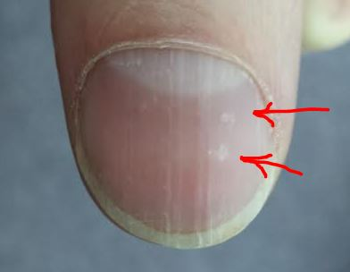 Zinc Deficiency And Fingernails 25