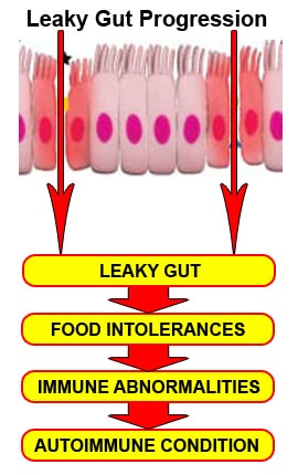 Food intolerance and leaky gut